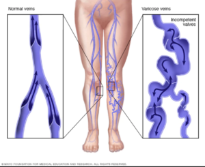 valve function in veins