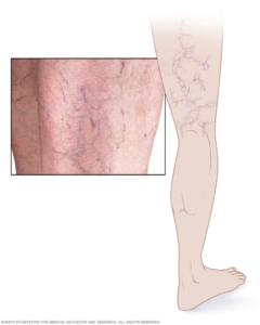 varicose vein illustration mayo clinic